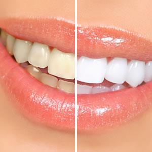 Branqueamentos Dentários